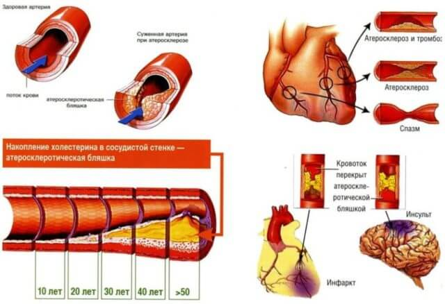 С годами сосуды изнашиваются, а неправильное питание в сочетании с вредными привычками добавляют проблем: на стенках образуются холестериновые бляшки, закупоривающие просвет и затрудняющие кровообращение в сердце, головном мозге и внутренних органах